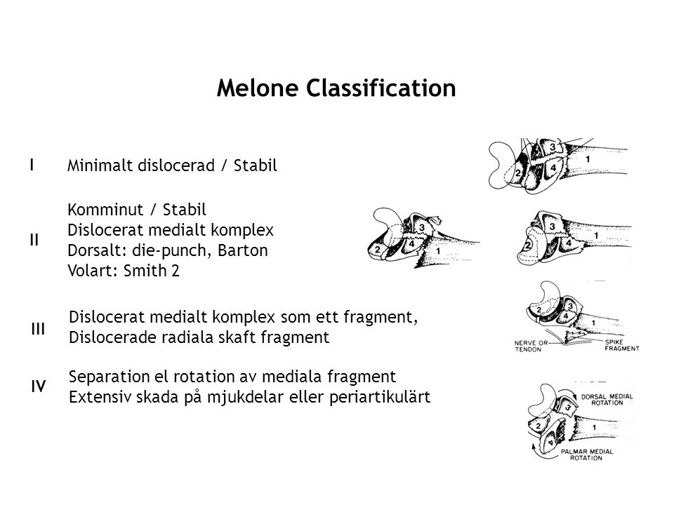 Melone Classification