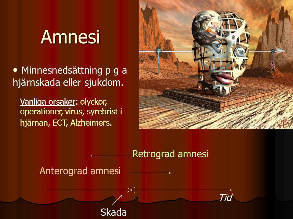Amnesi Minnesnedsättning p g a hjärnskada eller sjukdom.