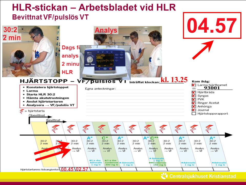 HLR-stickan – Arbetsbladet vid HLR Bevittnat VF/pulslös VT
