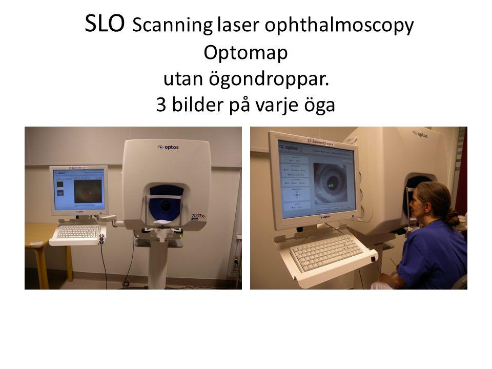 SLO Scanning laser ophthalmoscopy Optomap utan ögondroppar