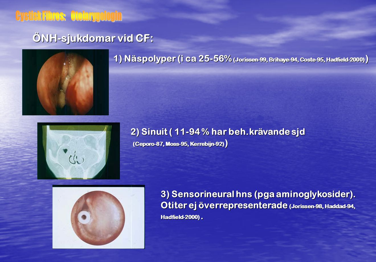 Cystisk Fibros: Otolarygologin