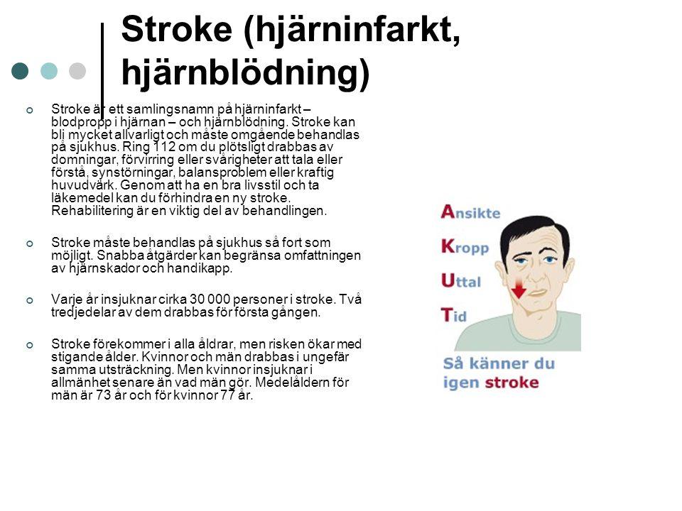 Stroke (hjärninfarkt, hjärnblödning)