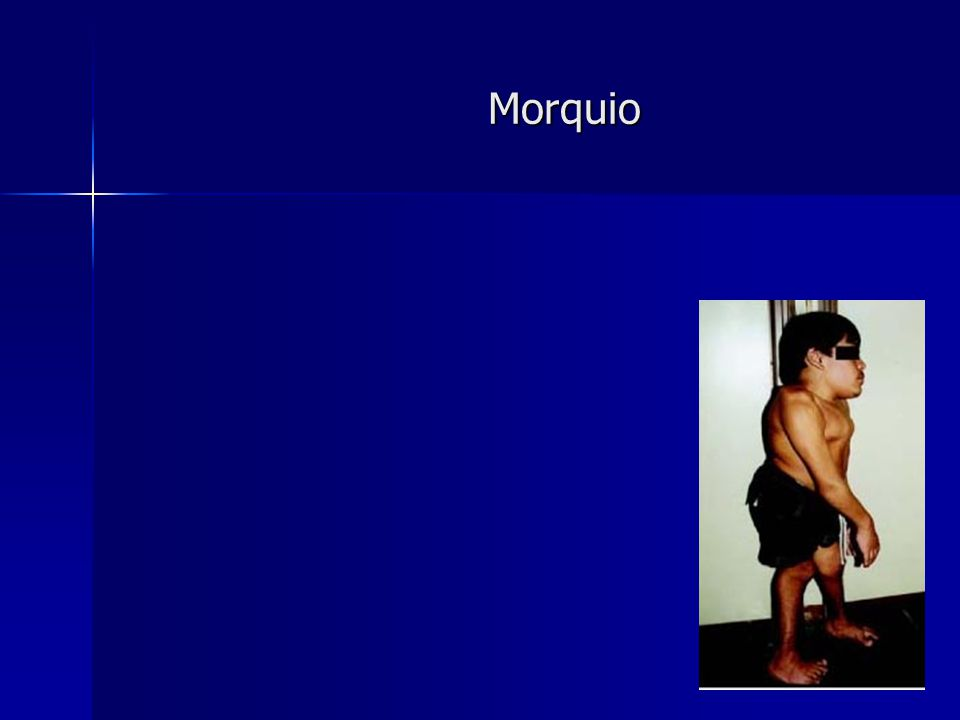 Morquio Morquio have two forms type A and B A is more severe