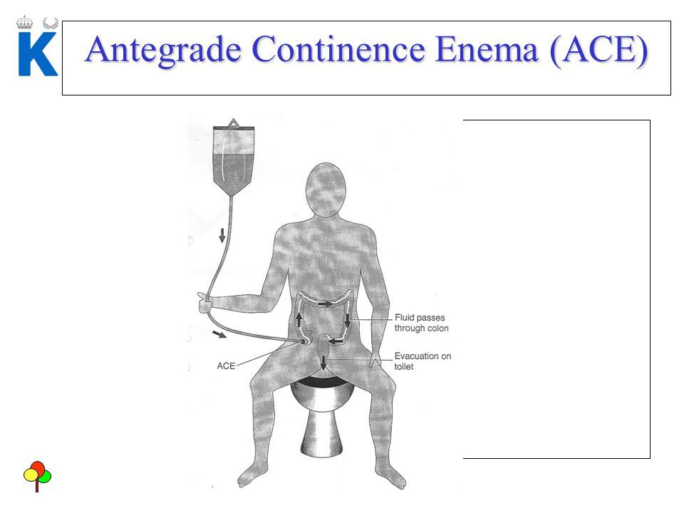 Antegrade Continence Enema (ACE)