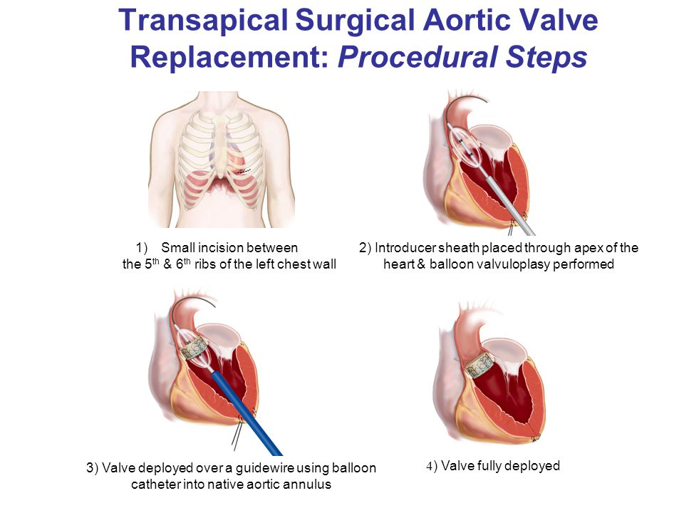 Transapical Surgical Aortic Valve Replacement: Procedural Steps