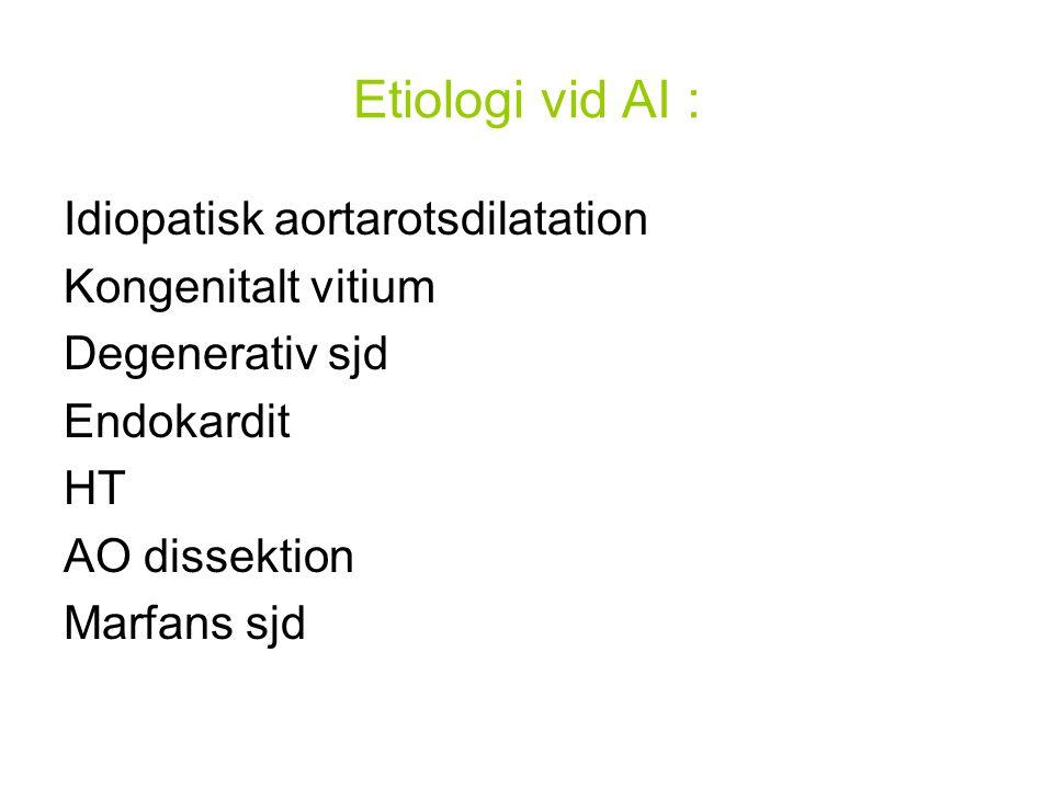 Etiologi vid AI : Idiopatisk aortarotsdilatation Kongenitalt vitium