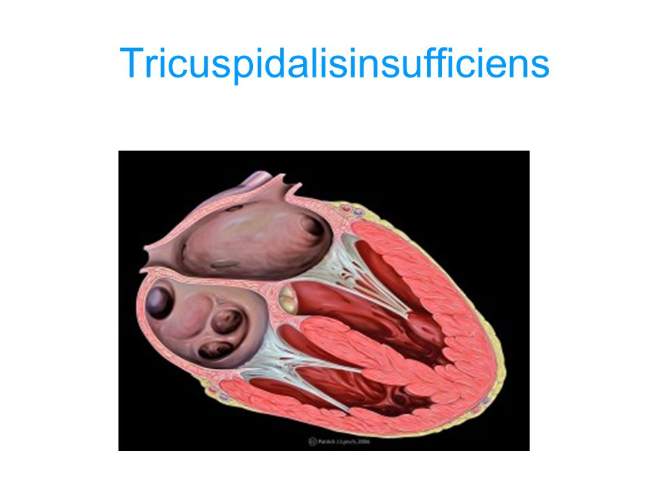 Tricuspidalisinsufficiens