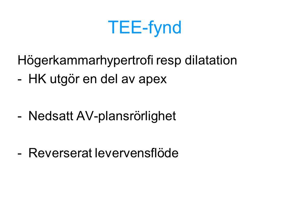 TEE-fynd Högerkammarhypertrofi resp dilatation HK utgör en del av apex