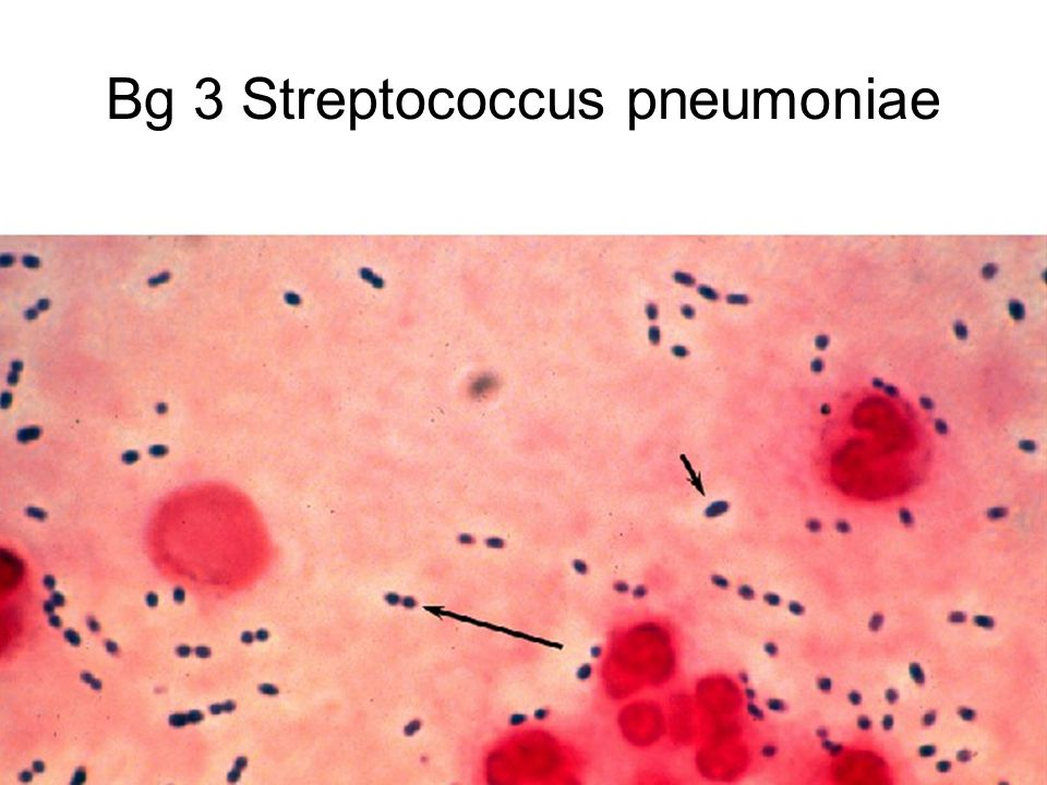 Bg 3 Streptococcus pneumoniae