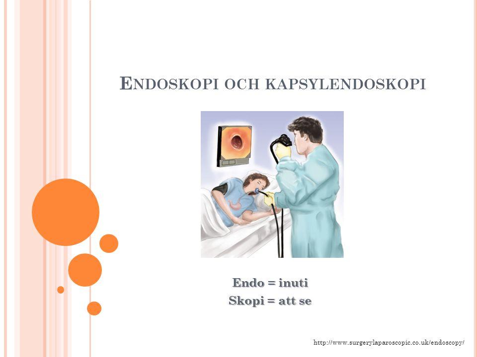 Endoskopi och kapsylendoskopi