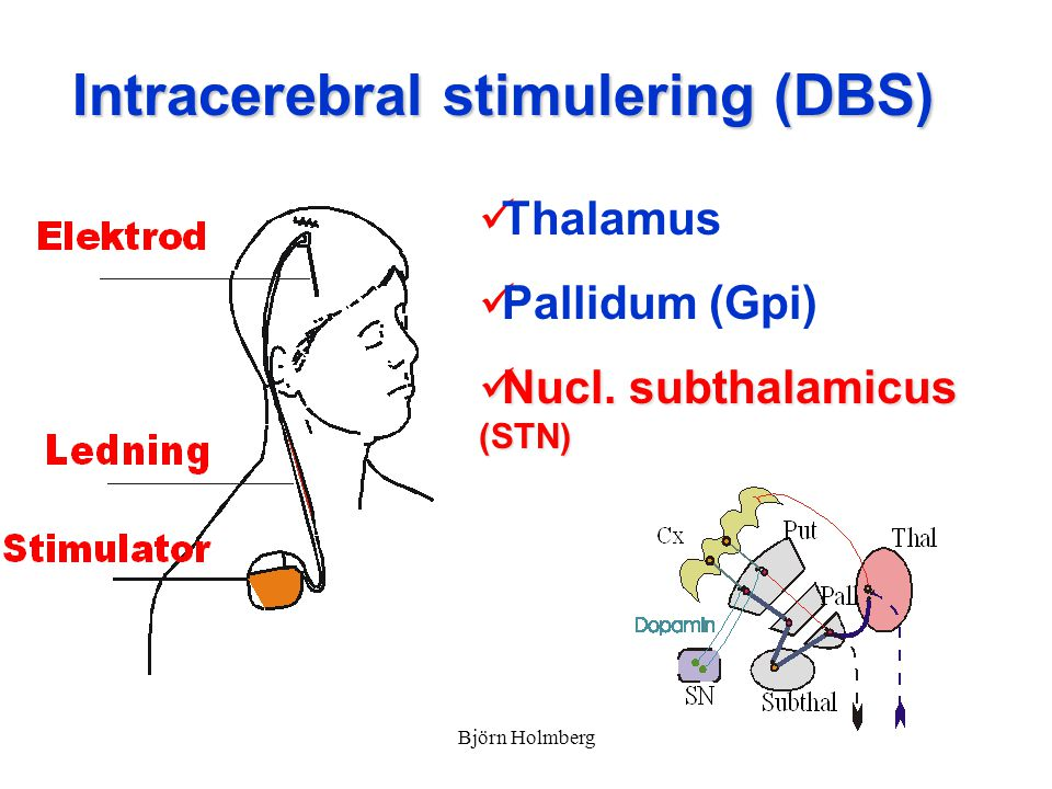 Intracerebral stimulering (DBS)