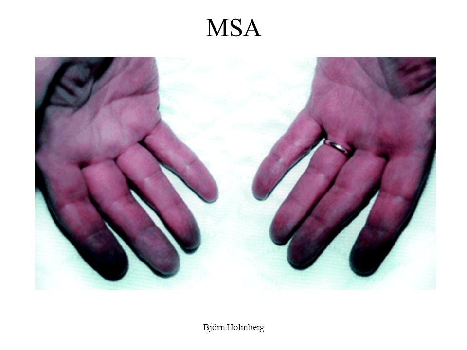 MSA Björn Holmberg