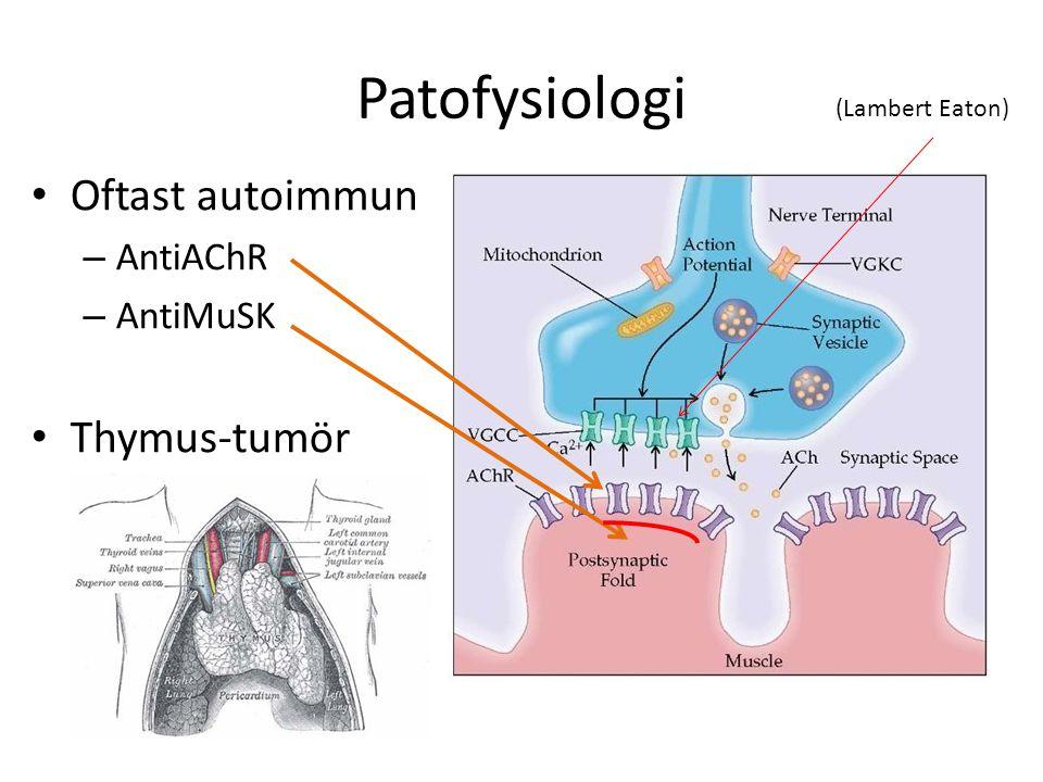 Patofysiologi Oftast autoimmun Thymus-tumör AntiAChR AntiMuSK