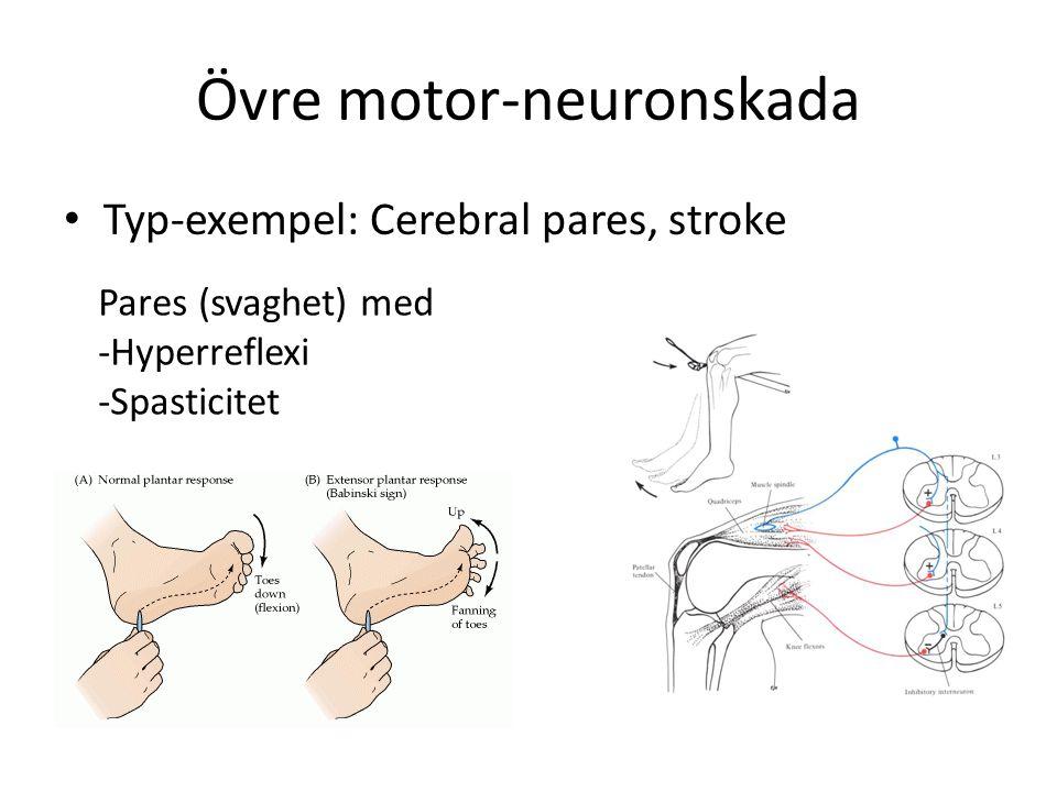 Övre motor-neuronskada
