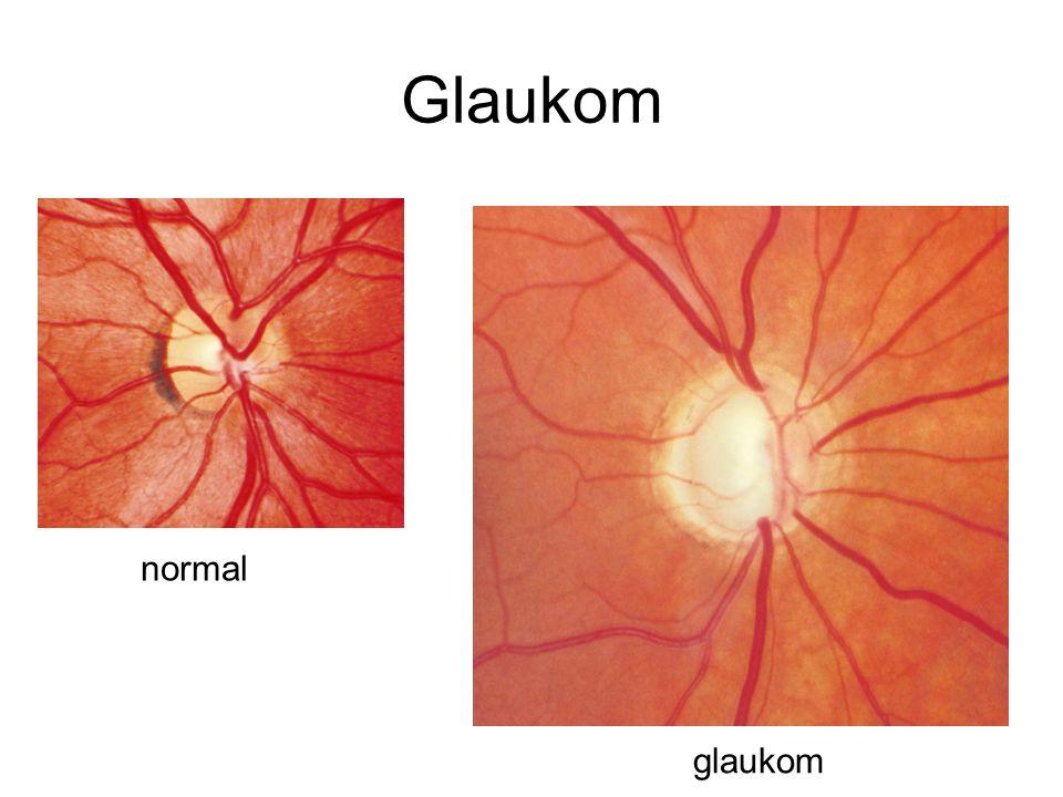 Glaukom normal glaukom