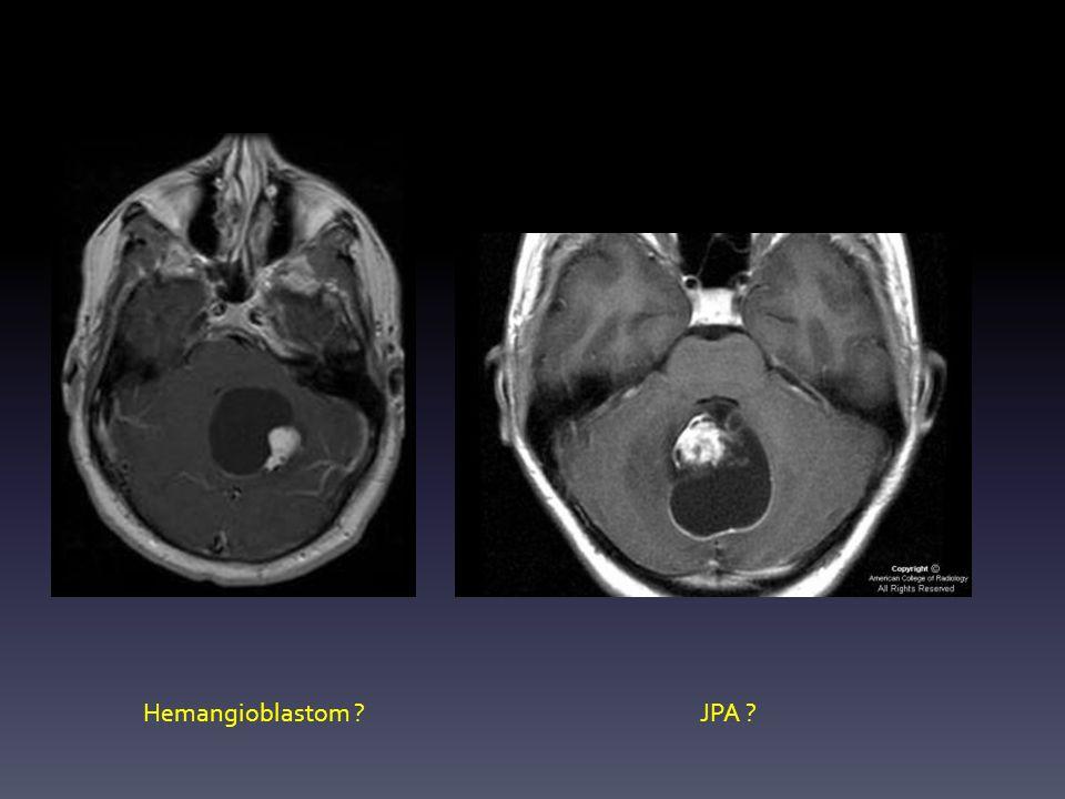 Hemangioblastom JPA