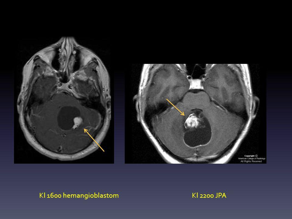 Kl 1600 hemangioblastom Kl 2200 JPA