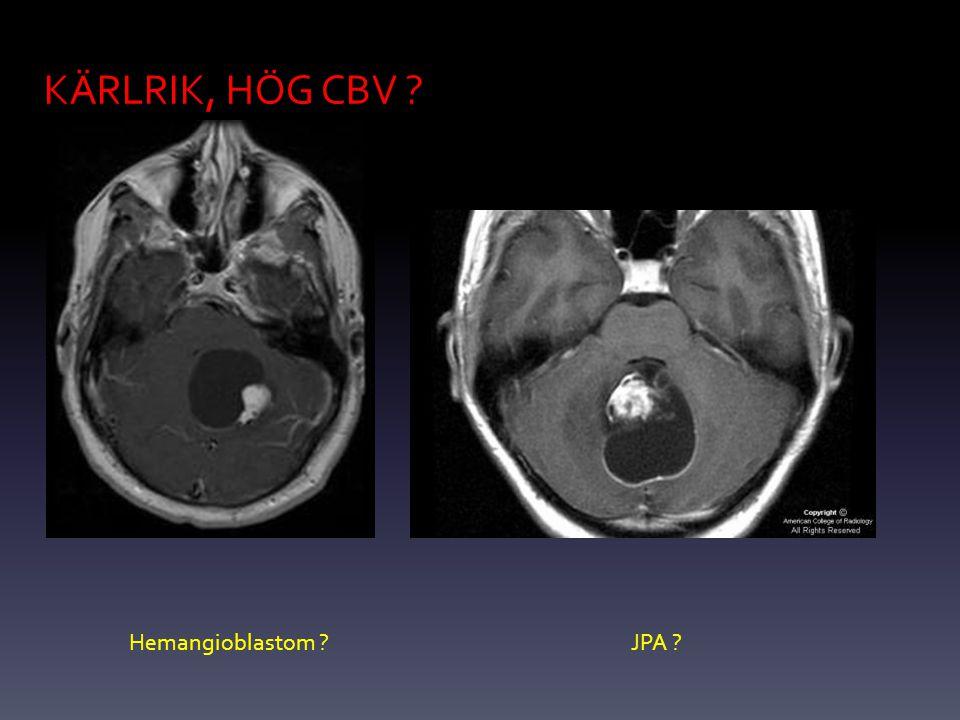 KÄRLRIK, HÖG CBV Hemangioblastom JPA