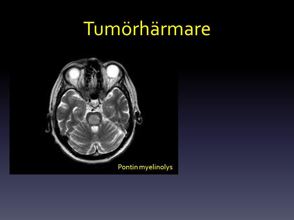 Tumörhärmare Pontin myelinolys