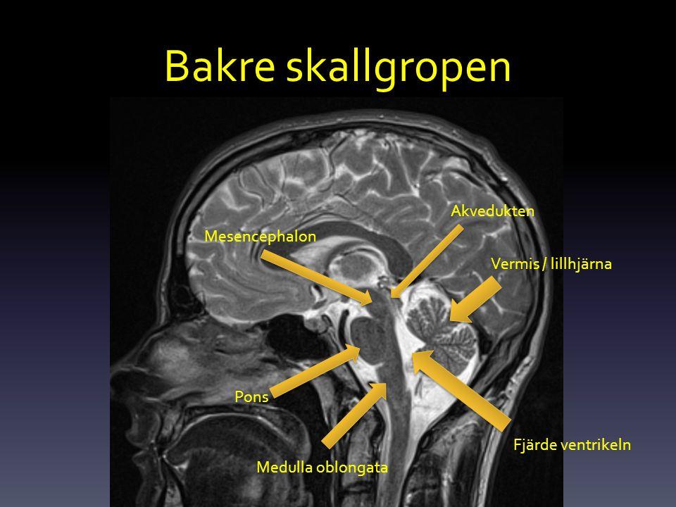 Bakre skallgropen Akvedukten Mesencephalon Vermis / lillhjärna Pons