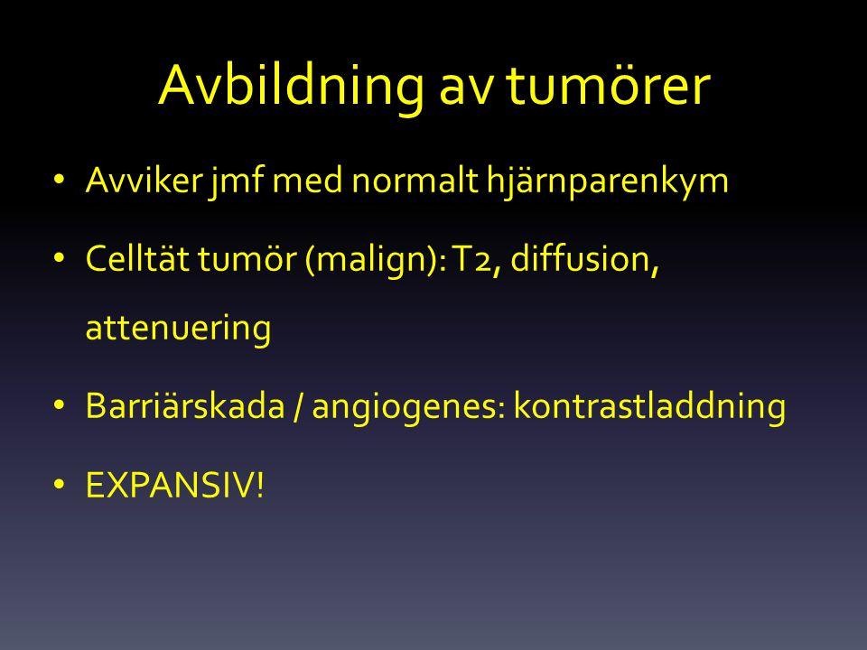 Avbildning av tumörer Avviker jmf med normalt hjärnparenkym