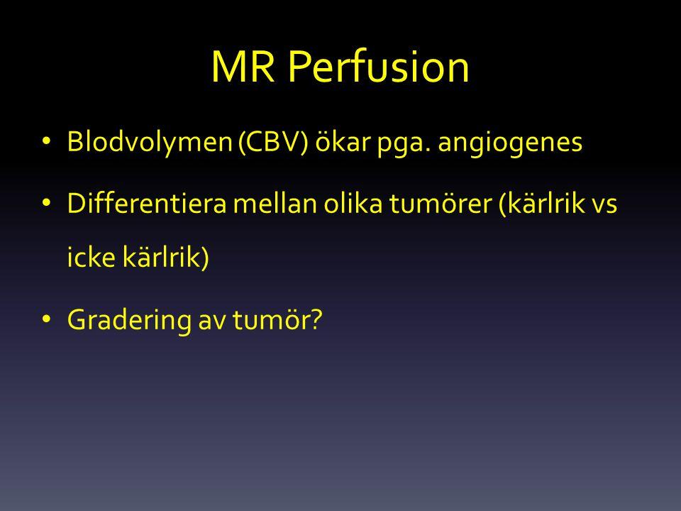 MR Perfusion Blodvolymen (CBV) ökar pga. angiogenes
