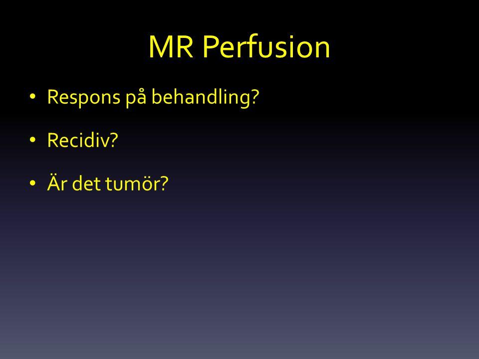 MR Perfusion Respons på behandling Recidiv Är det tumör