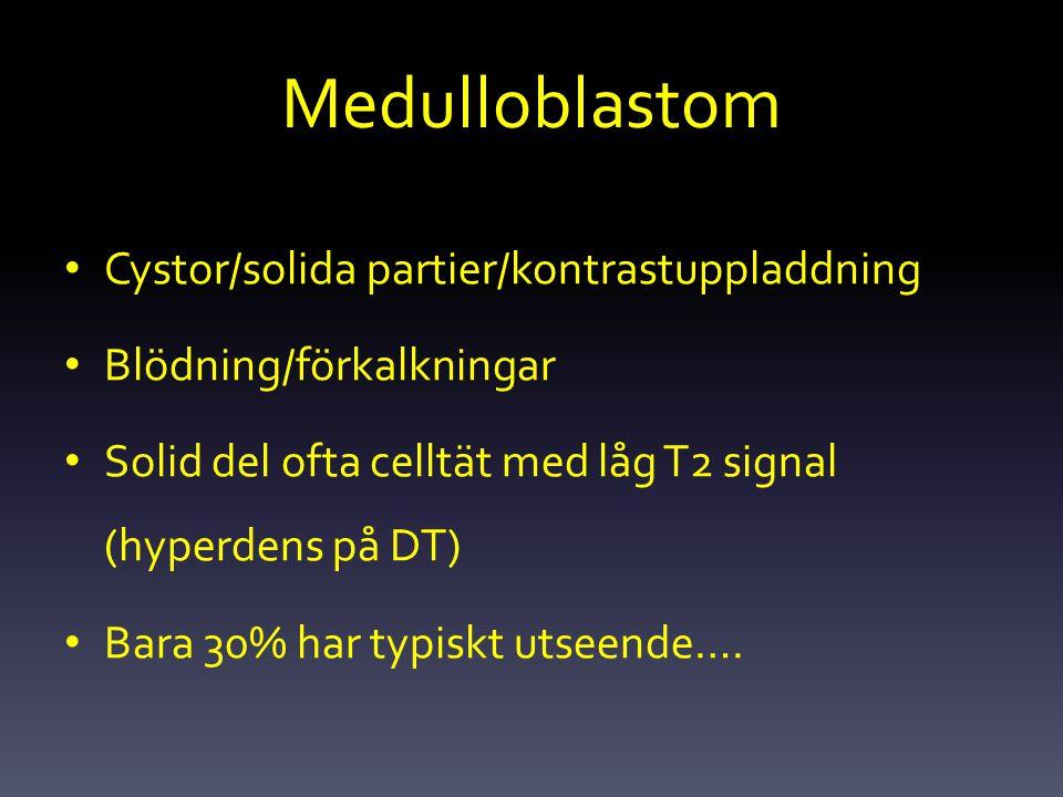 Medulloblastom Cystor/solida partier/kontrastuppladdning