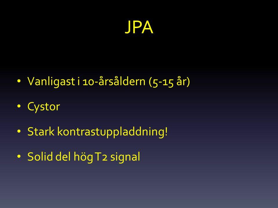 JPA Vanligast i 10-årsåldern (5-15 år) Cystor