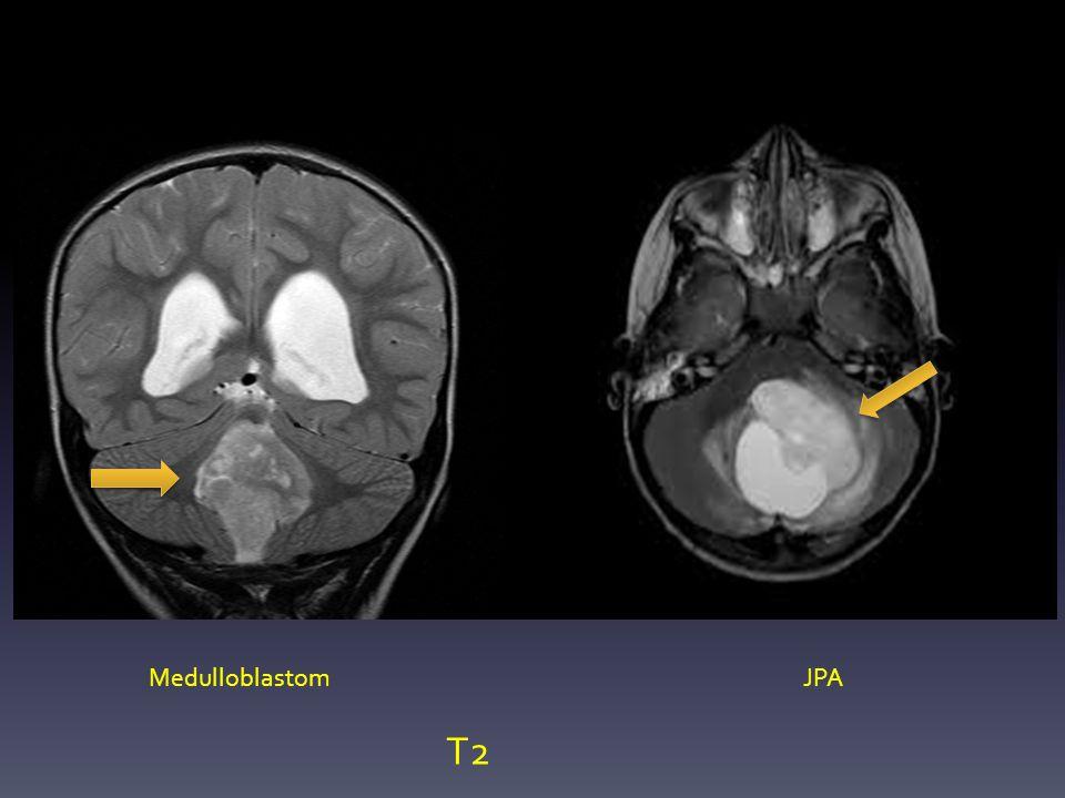Medulloblastom JPA T2