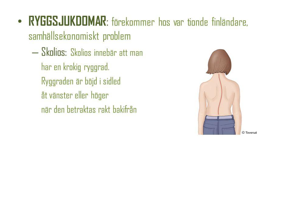 RYGGSJUKDOMAR: förekommer hos var tionde finländare, samhällsekonomiskt problem