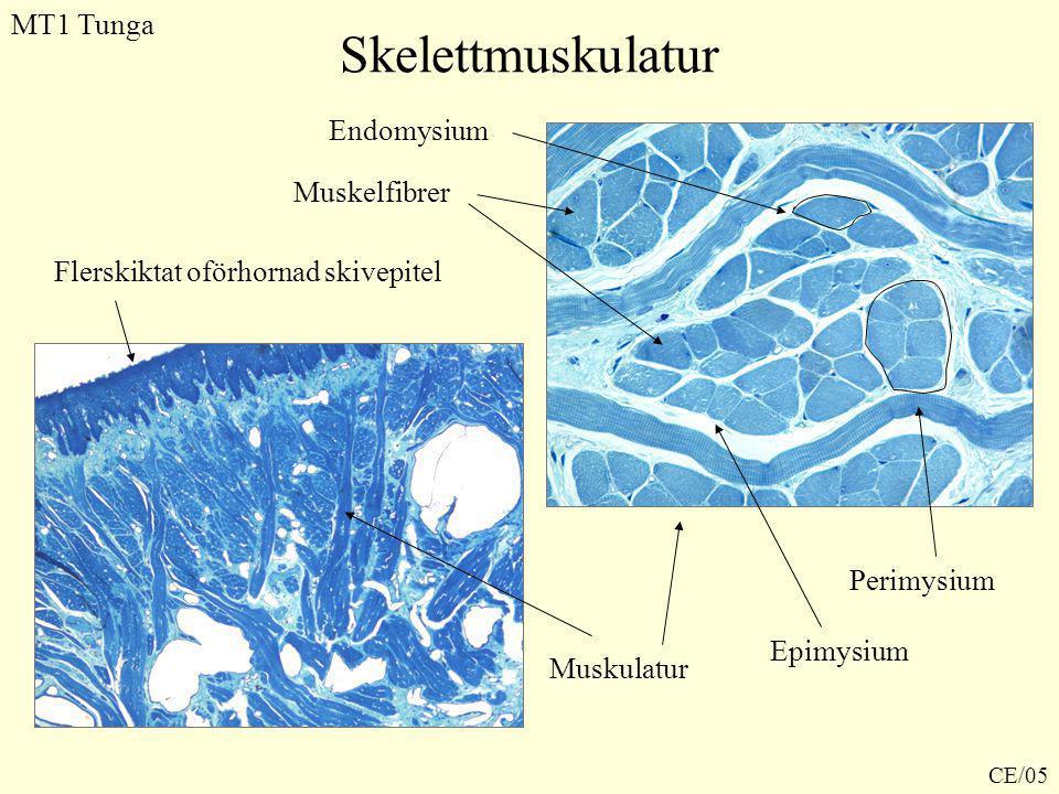 Skelettmuskulatur MT1 Tunga Endomysium Muskelfibrer