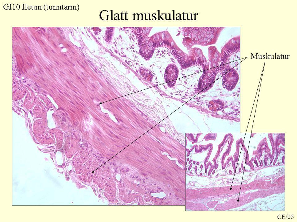 GI10 Ileum (tunntarm) Glatt muskulatur Muskulatur CE/05