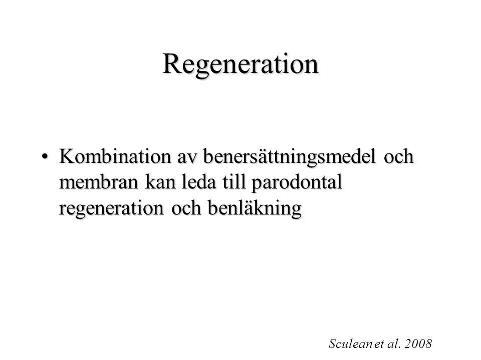 Regeneration Kombination av benersättningsmedel och membran kan leda till parodontal regeneration och benläkning.