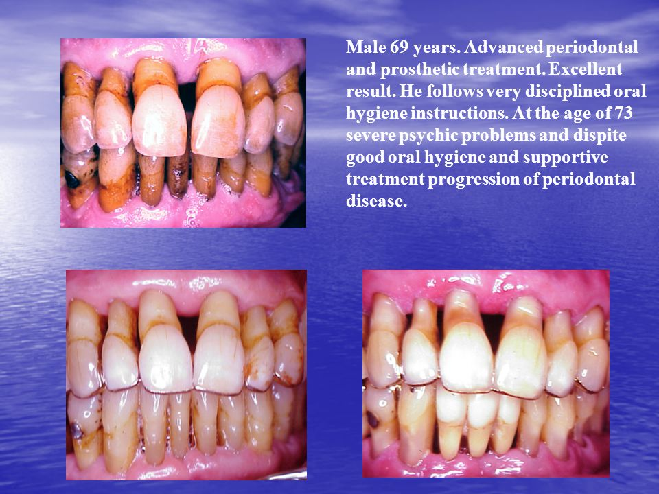 Male 69 years. Advanced periodontal and prosthetic treatment