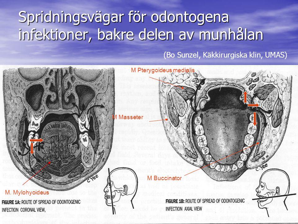 Spridningsvägar för odontogena infektioner, bakre delen av munhålan