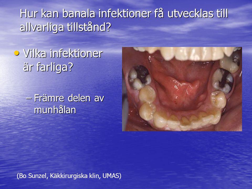 Hur kan banala infektioner få utvecklas till allvarliga tillstånd