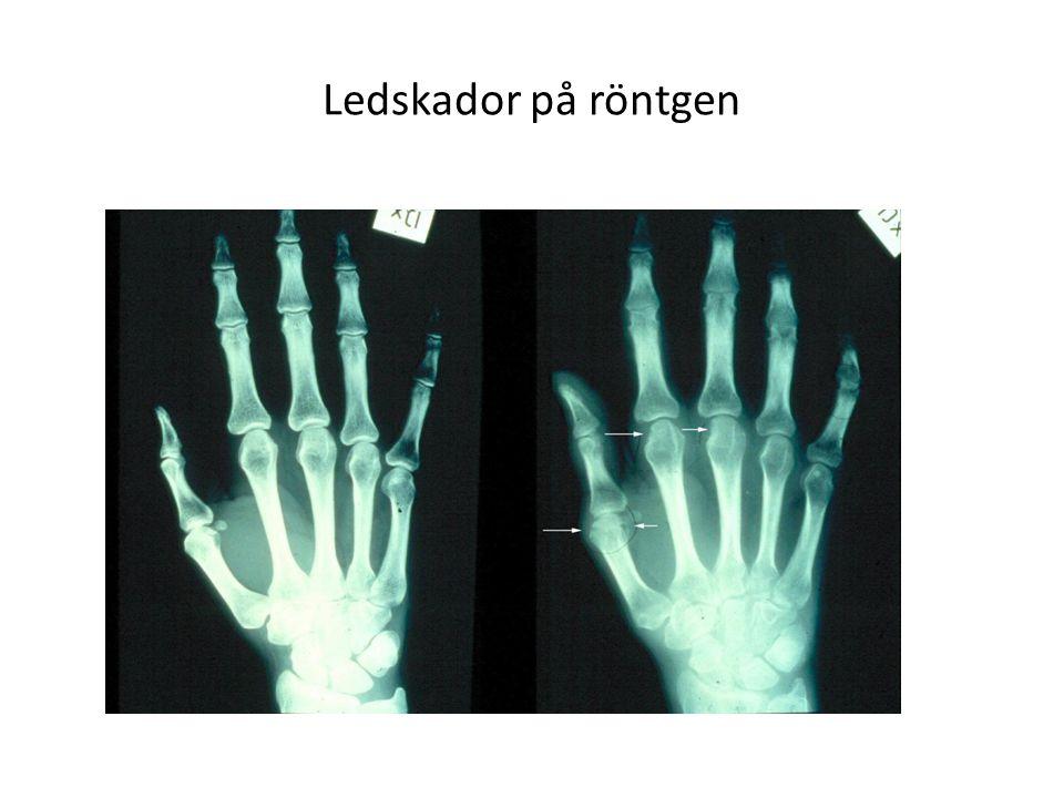 Ledskador på röntgen