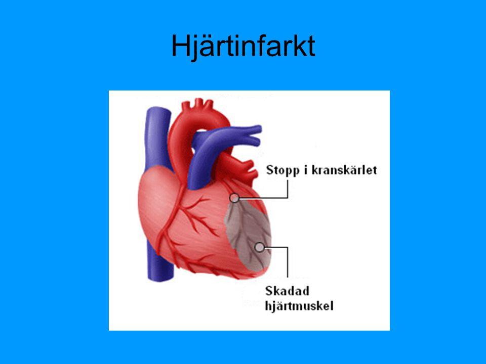 Hjärtinfarkt