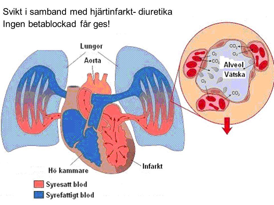 Svikt i samband med hjärtinfarkt- diuretika