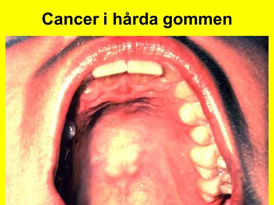 Cancer i hårda gommen