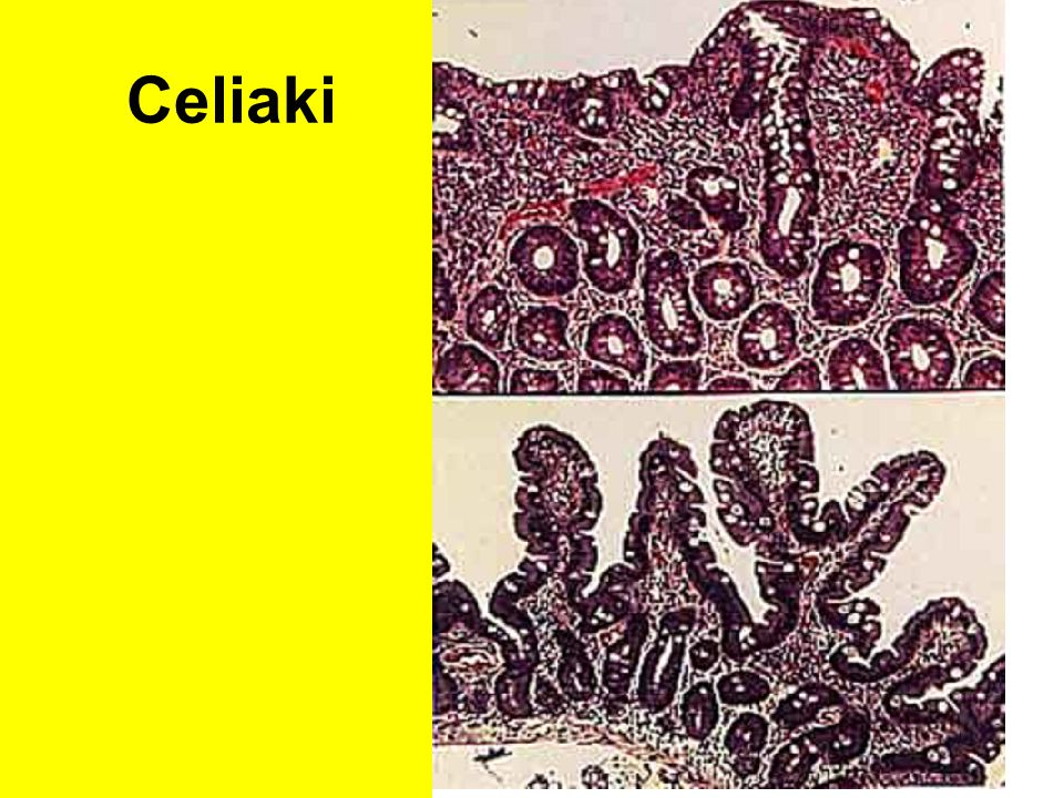 Celiaki