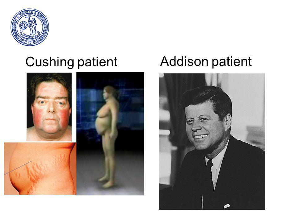 Cushing patient Addison patient
