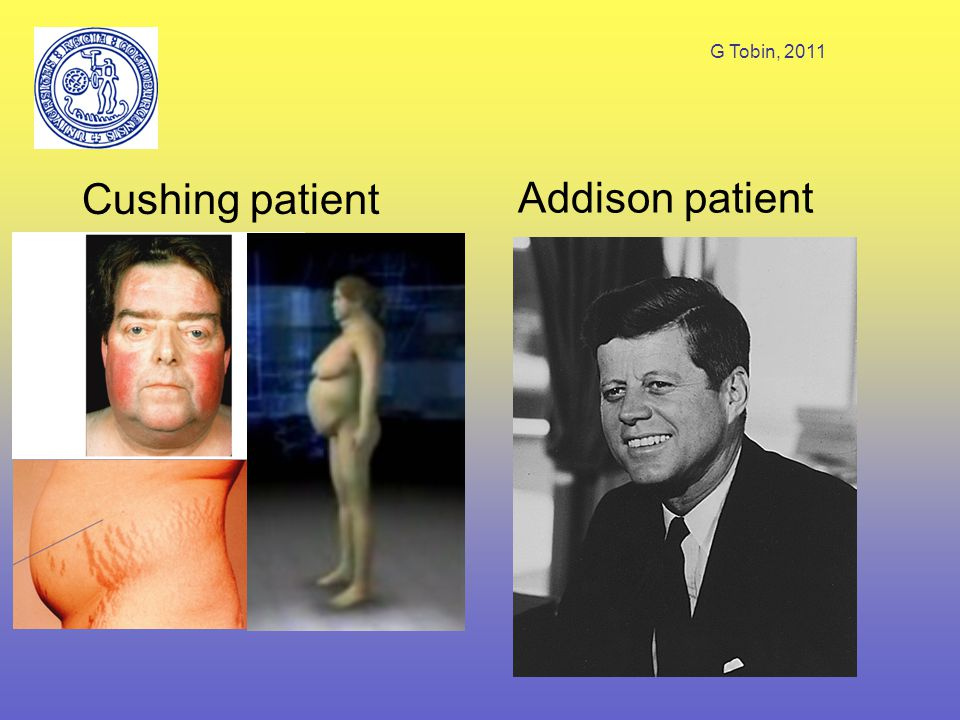 G Tobin, 2011 Cushing patient Addison patient