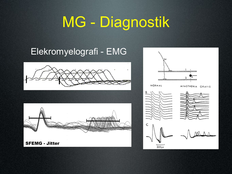 Elekromyelografi - EMG