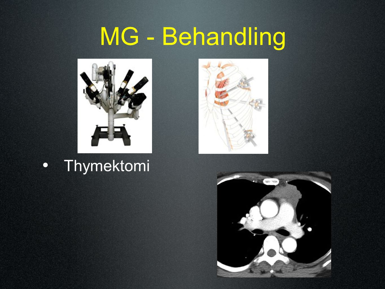 MG - Behandling Thymektomi