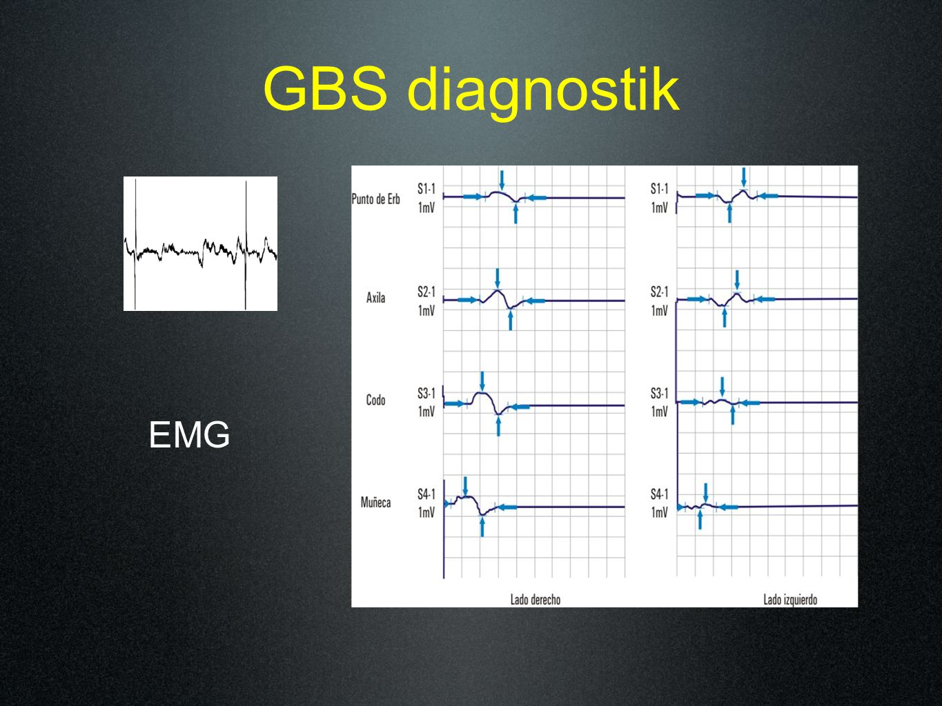 GBS diagnostik EMG