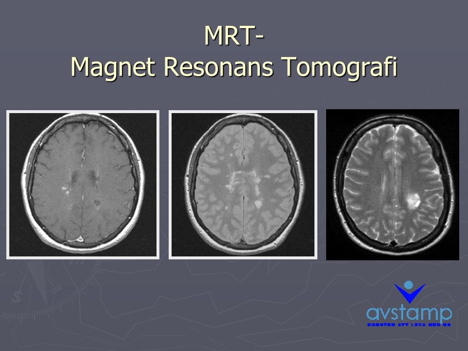 MRT- Magnet Resonans Tomografi