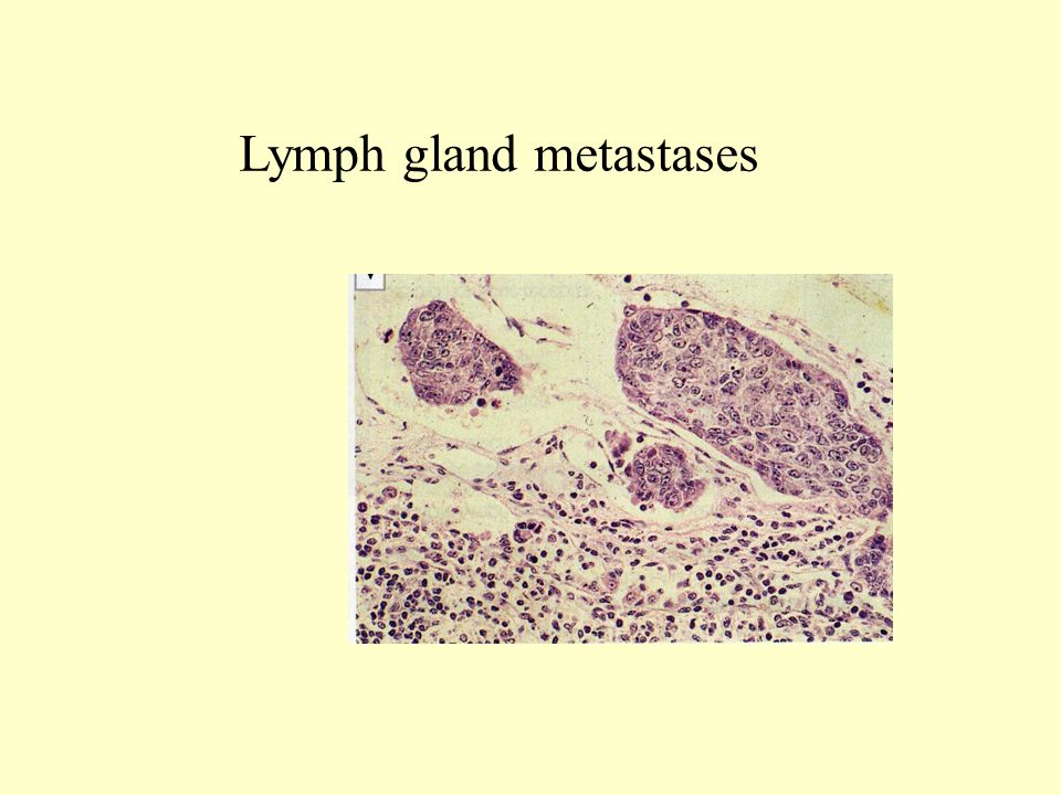 Lymph gland metastases