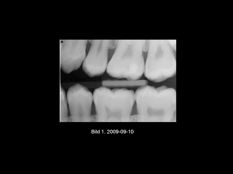 Bild 1. 2009-09-10